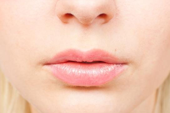 Mistä nenäverenvuoto voi johtua?