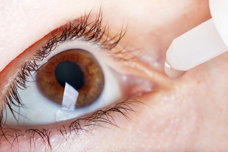 kuivat silmät
