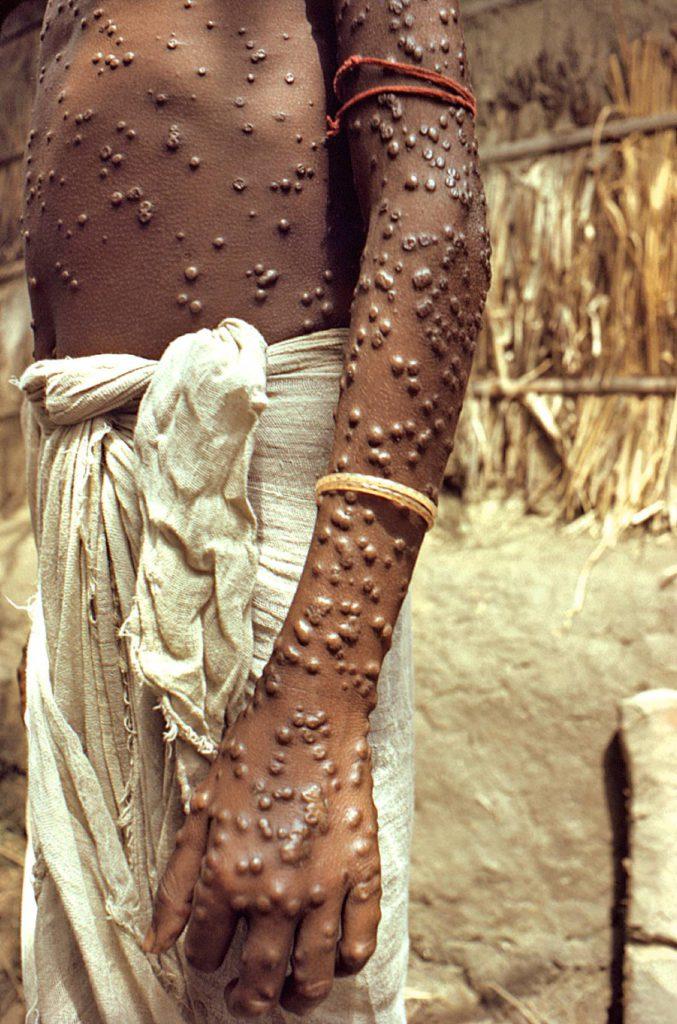 Vielä 1970-luvun alussa isorokkoon vuosittain menehtyneiden määrä oli parin miljoonan luokkaa, mutta rokotukset tepsivät. WHO julisti isorokon hävitetyksi koko maailmasta vuonna 1980.
