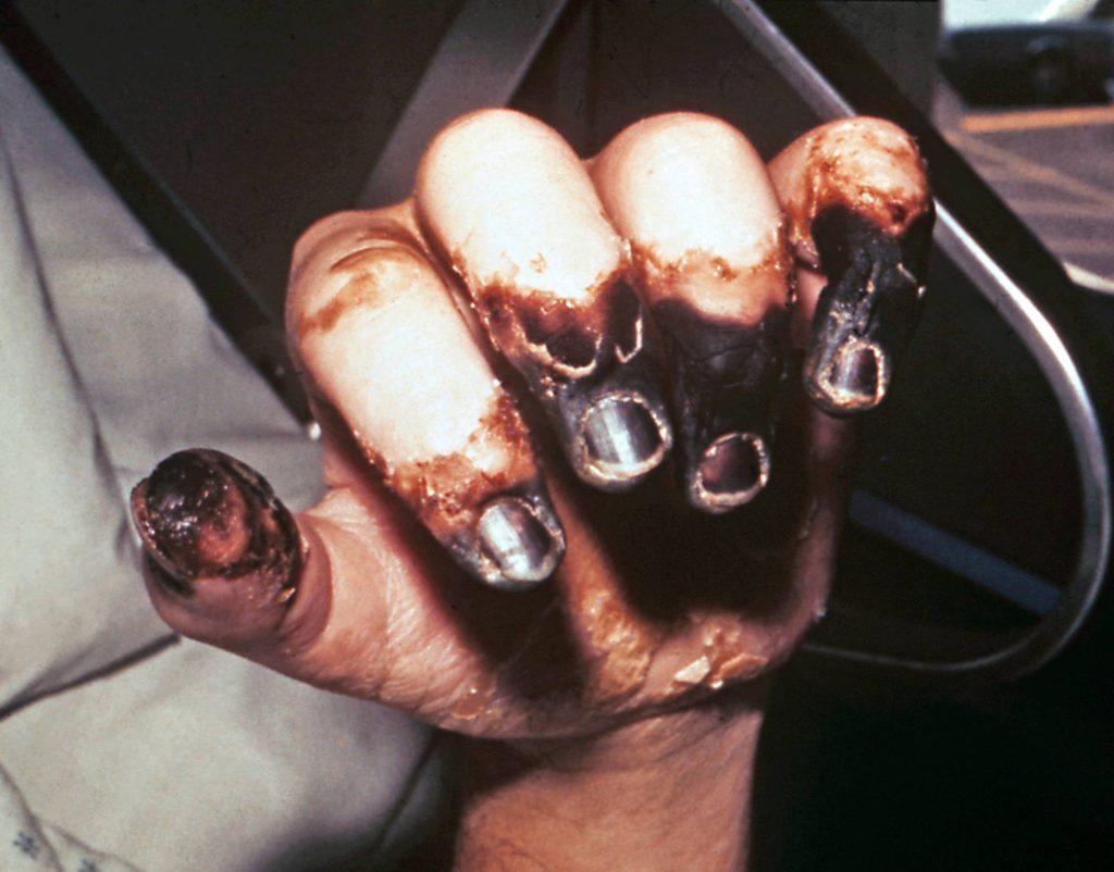 Jyrsijöissä loisina elävien kirppujen välityksellä leviävä rutto on vähentynyt maailmasta hygienian parantumisen myötä. Vuonna 2013 diagnosoitiin WHO:n mukaan 783 ruttotapausta ja joista 126 johti kuolemaan.