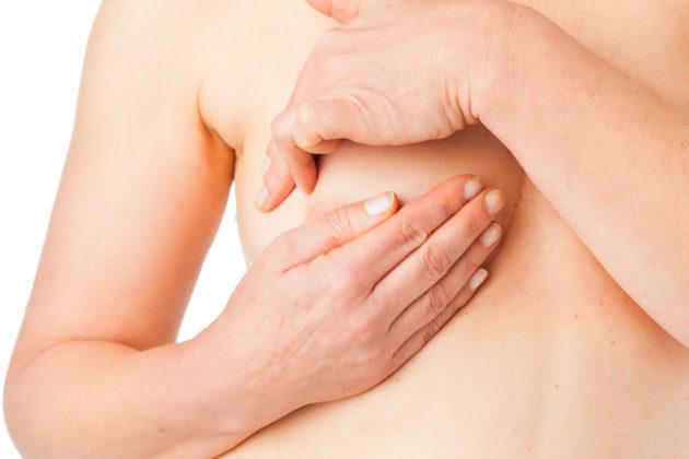 Miten omaa rintasyöpäriskiään voi pienentää?