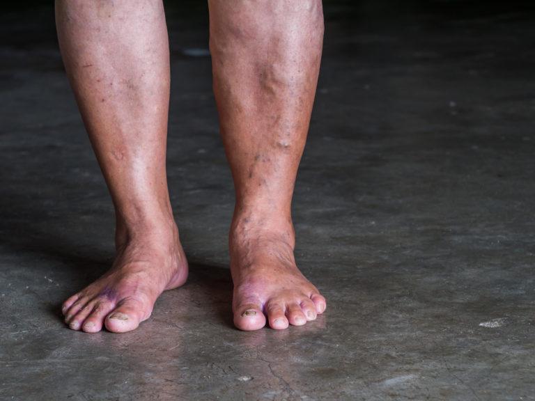 Jaloissa on suonikohjuja.