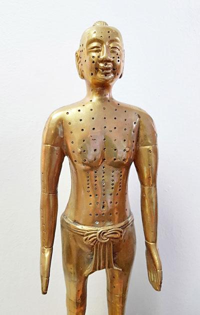 Kiinalaisessa lääketieteessä hyödynnetään akupunktioneuloja.
