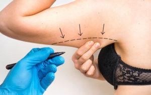 Plastikka- ja kauneuskirurgiassa tehdään esteettisiä toimenpiteitä.