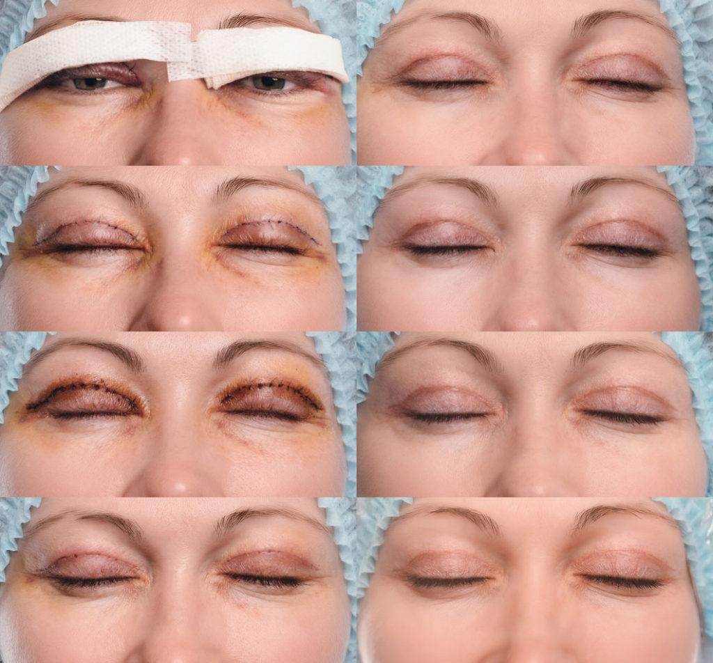 Plastikkakirurgiassa tehdään esteettisiä toimenpiteitä kuten yläluomen leikkauksia.