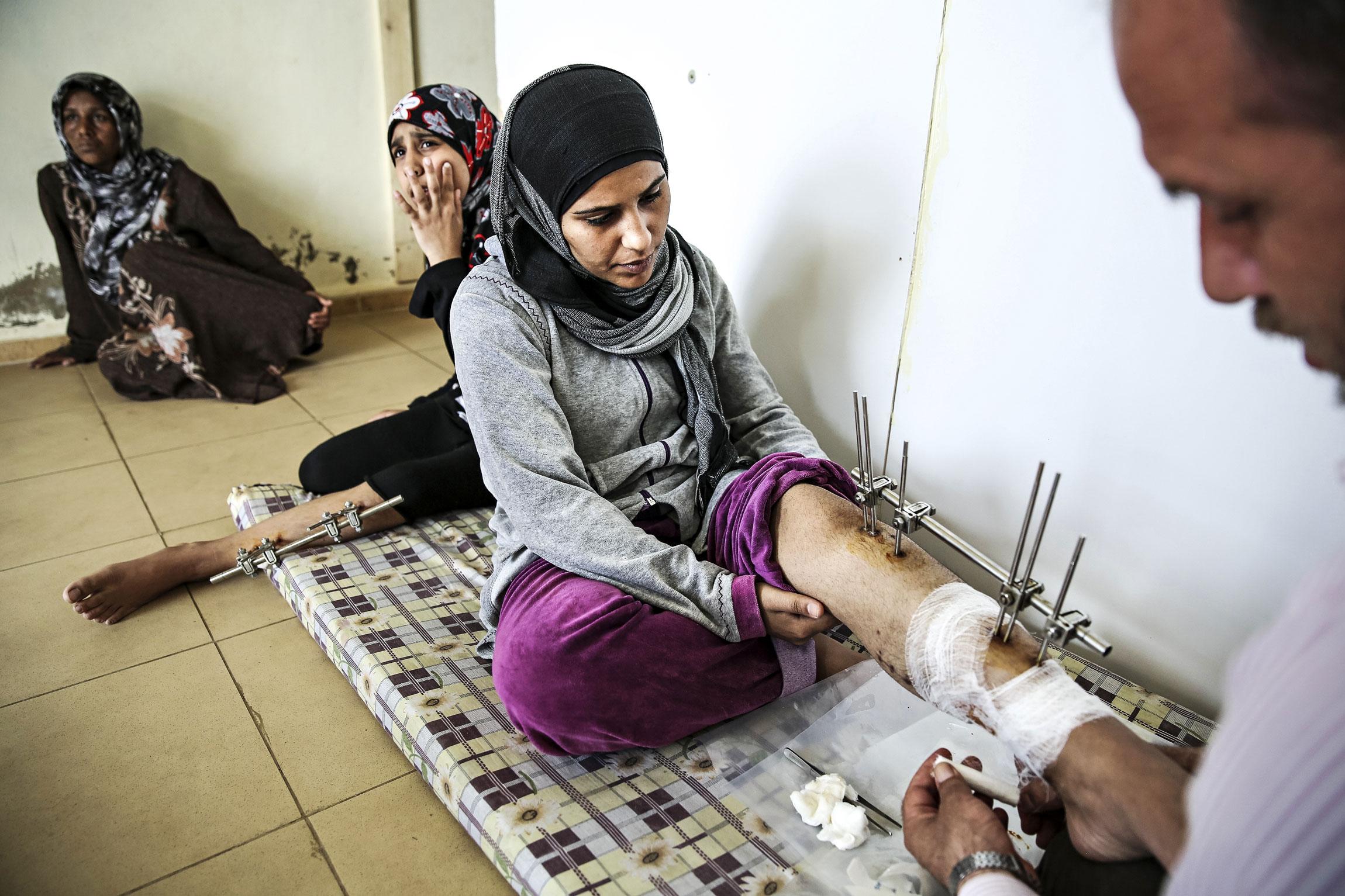 Imaami Abu Mohammad lääkitsee Syyriassa haavoittuneen Tharan jalkaa. Myös nuorempi sisar Esra, taustalla, sai sirpaleita jalkaansa.