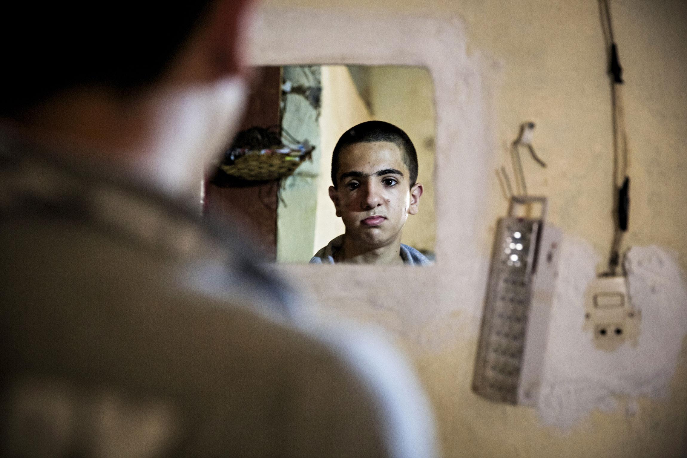 Amjad menetti osan näöstään, kasvoistaan ja äänestään kun sota tuli hänen kotiinsa.