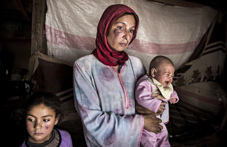 """Leirioloissa leviävää """"Aleppon"""" ihottumaa sairastava perhe Bekaan laaksossa."""
