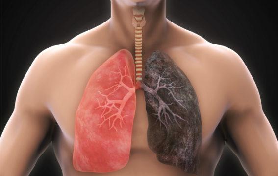Terve keuhko eroaa selvästi tupakoitsijan keuhkosta.