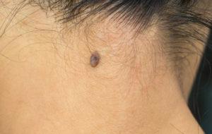 Melanooman voi havaita terveelle iholle ilmestyvänä pigmenttimuutoksena tai uutena luomena.