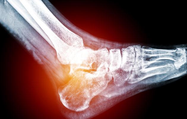 Ortopedi selvittää jalkasäryn syyt.