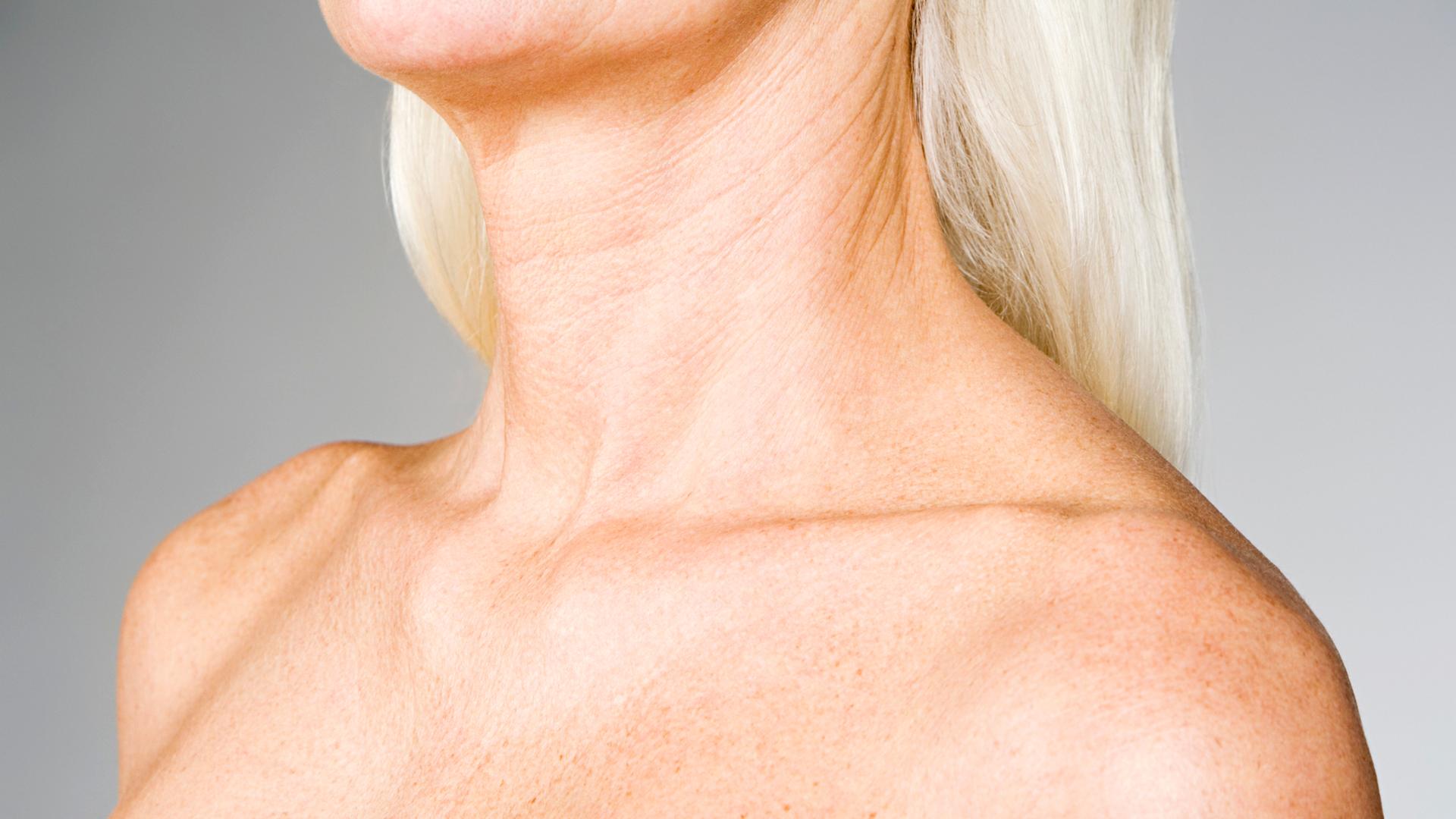 Voiko ihon ikääntymistä hidastaa purkkikollageenilla?