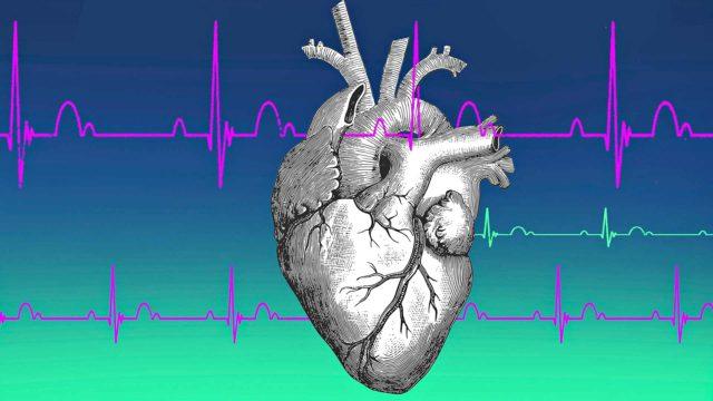 Hoitovirheestä sydäninfarkti