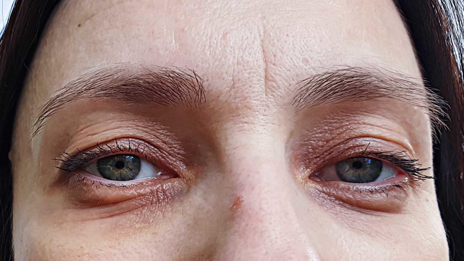 Silmänaluset