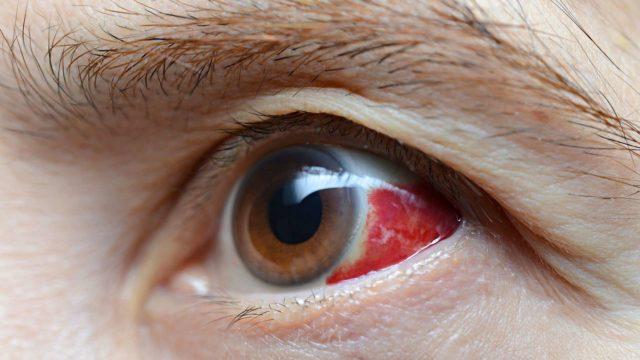 Jos silmän verisuonen katkeaminen johtuu ulkoisesta vammasta, silloin sitä täytyy lähteä näyttämään lääkärille.