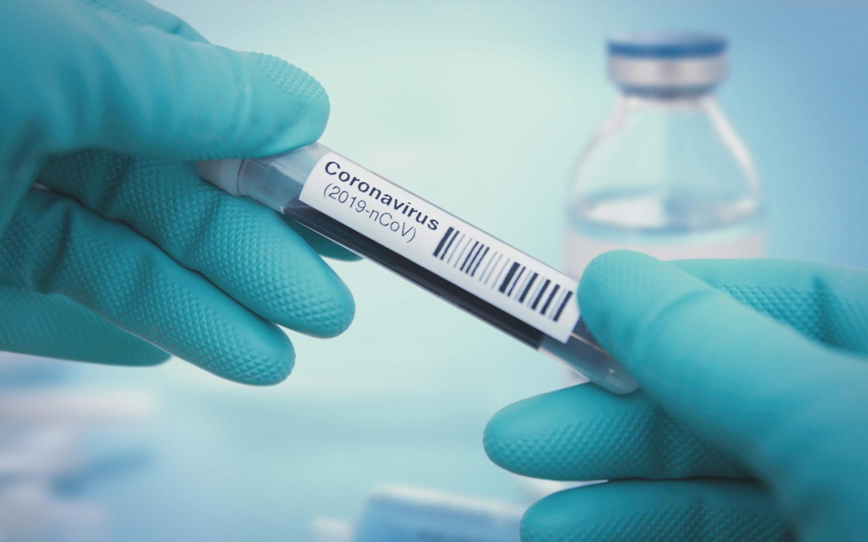 Koronavirukselle altistuneiden oireetmuistuttavat alkuvaiheessa minkä tahansa hengitysteiden virusinfektion oireita.