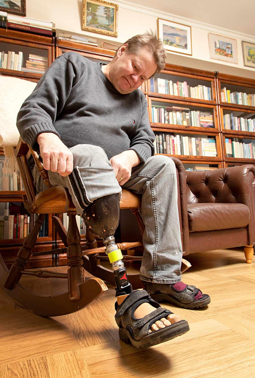 """""""Proteesiteknikkoni ehdotuksesta pidän proteesia myös näkyvillä – kanssaihmisten on hyvä tietää, että keskuudessamme liikutaan tällaisillakin jaloilla"""", Markku Rajala kertoo."""