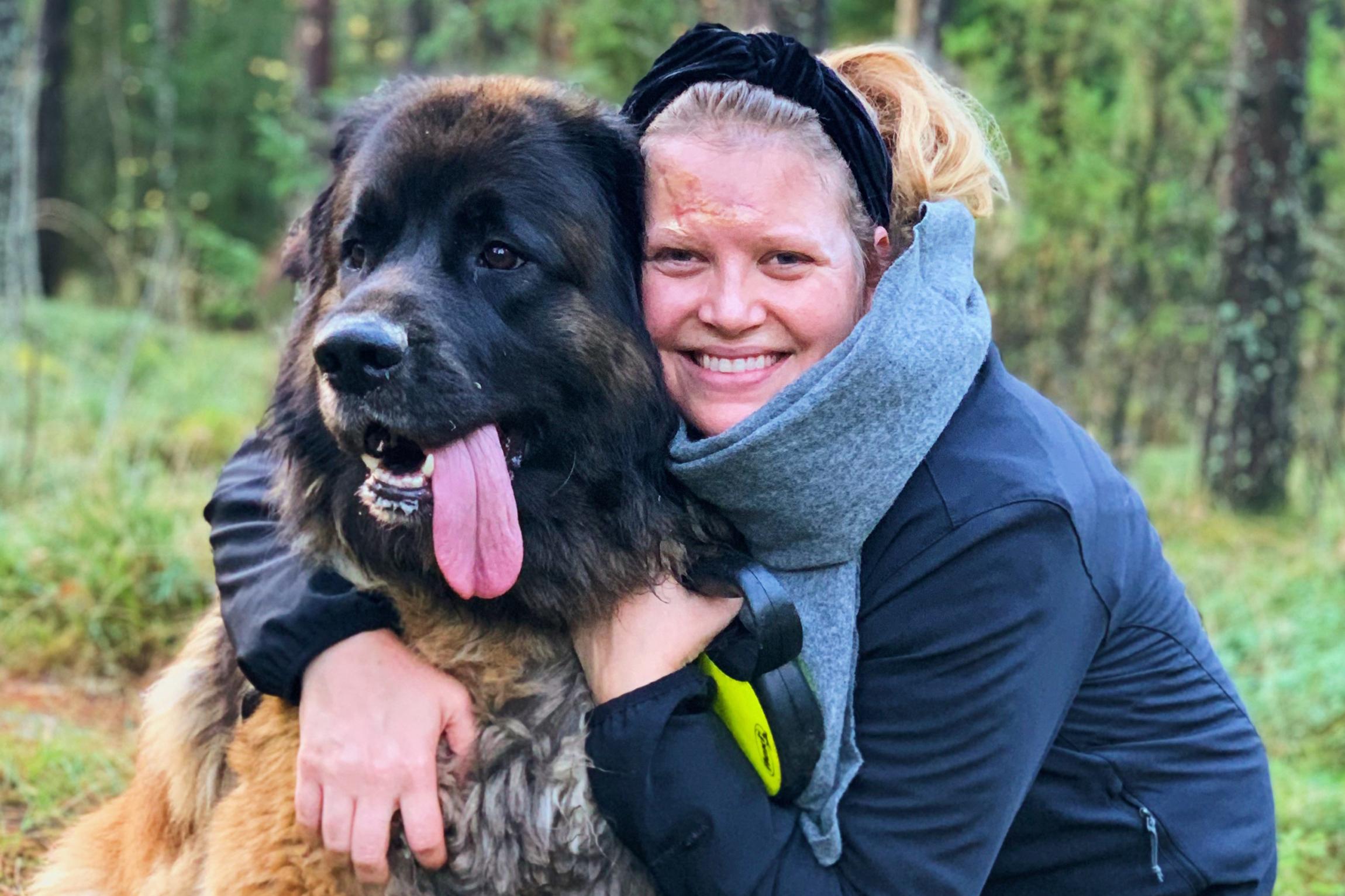 Cecilia Pellosniemi on toipunut hyvin. Tältä hän näyttää kolme kuukautta räjähdyksen jälkeen.