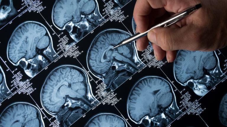 Alzheimer-tutkimus
