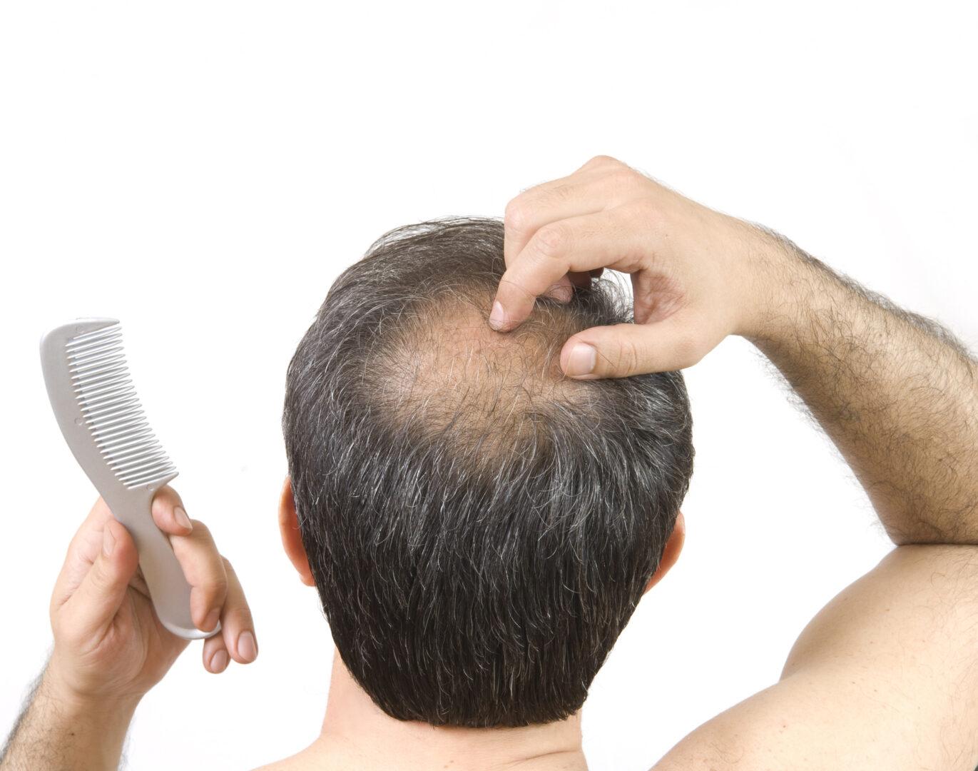Hiustenlähtö huolettaa ja kaljuuntuminen pelottaa.