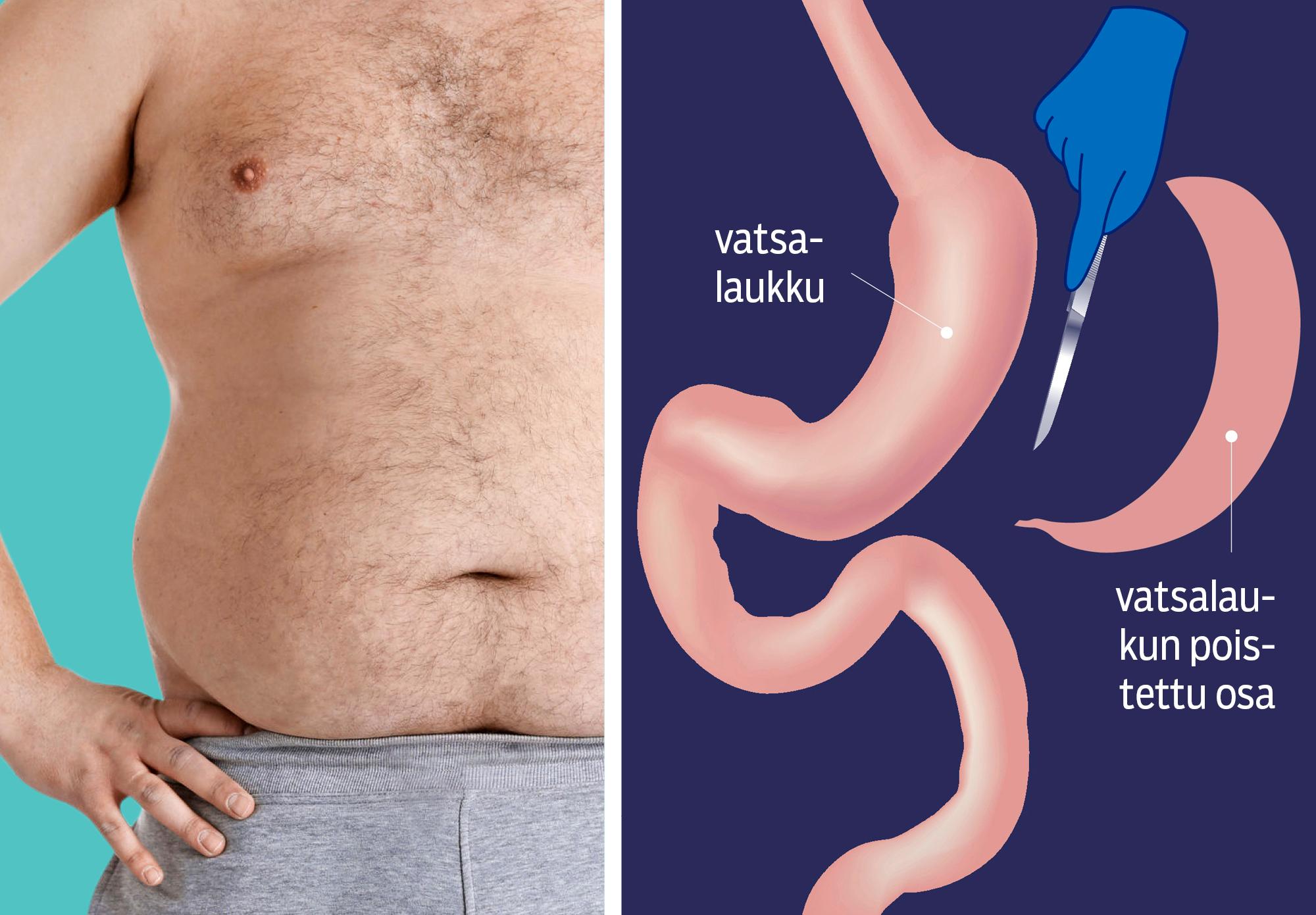 Lihavuusleikkauksessa mahalaukkua pienennetään. Leikkauksen jälkeen sinne ei mahdu ruokaa yhtä paljon kuin aiemmin.